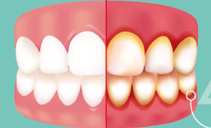 Parodontna bolest Meniga ordinacija